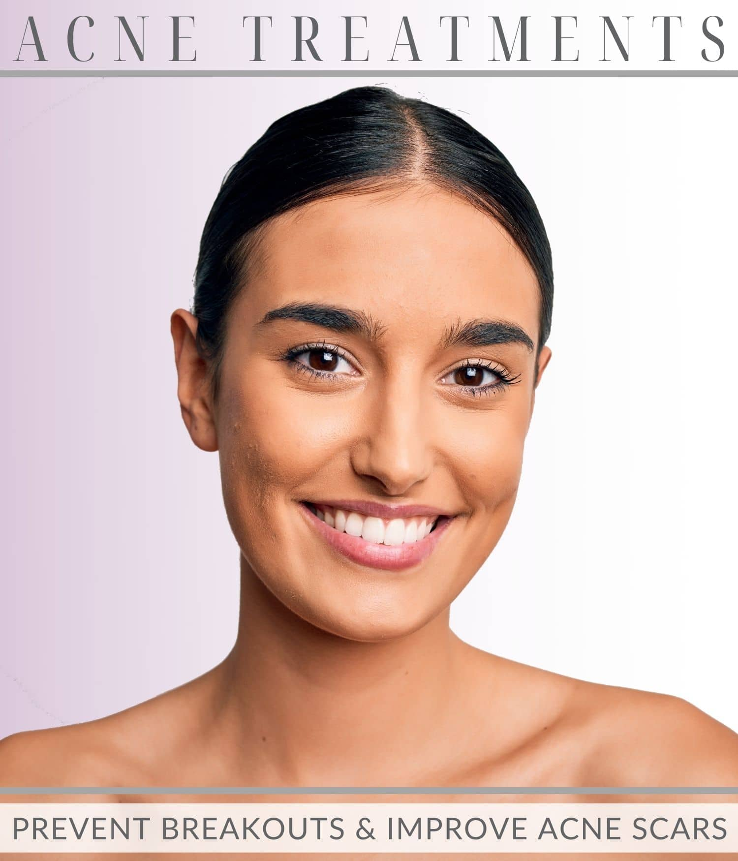 beautiful young woman from acne treatments