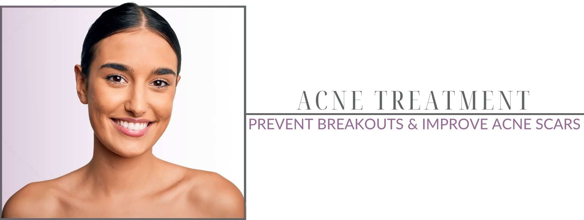 young woman with beautiful face from acne treatments