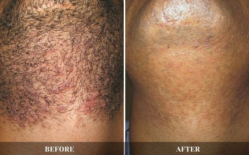 Laser hair removal treatment in West Hollywood, CA