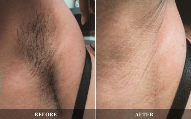 Laser Hair Removal treatment at CRMC Aesthetics