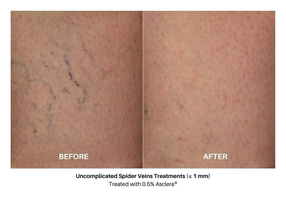 asclera_sclerotherapy_before_and_after_1