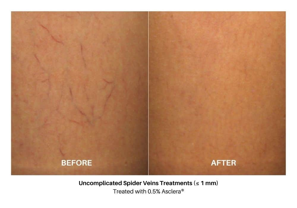 asclera_sclerotherapy_before_and_after_2