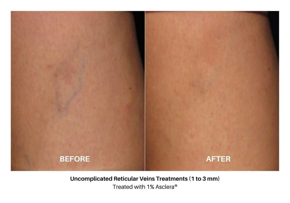 asclera_sclerotherapy_before_and_after_3