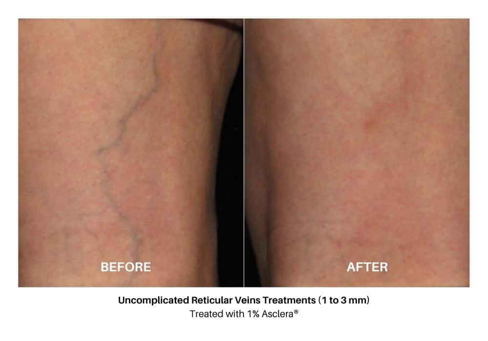 asclera_sclerotherapy_before_and_after_4