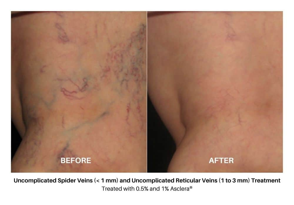 asclera_sclerotherapy_before_and_after_5