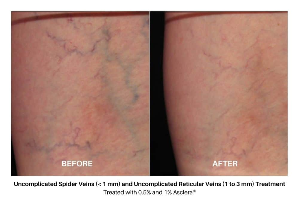 asclera_sclerotherapy_before_and_after_6