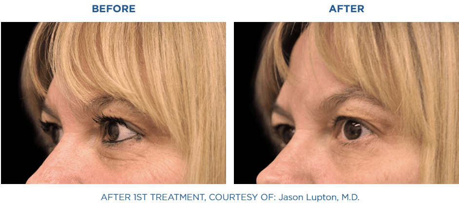 exilis_before_and_after_3