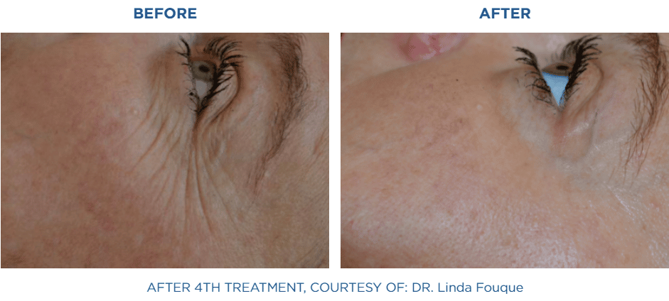 exilis_before_and_after_4