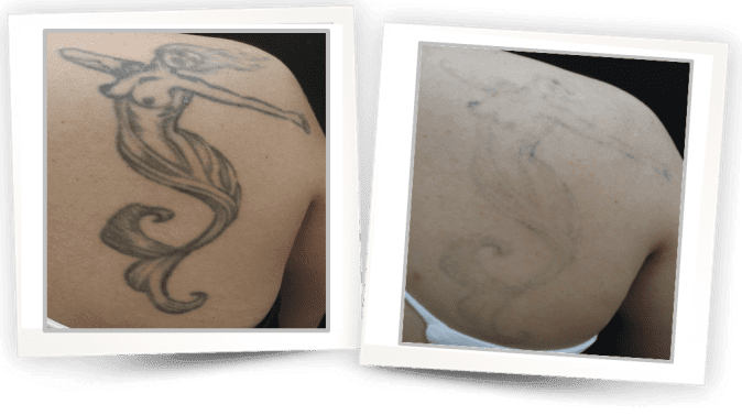 Laser Tattoo Removal in West Hollywood