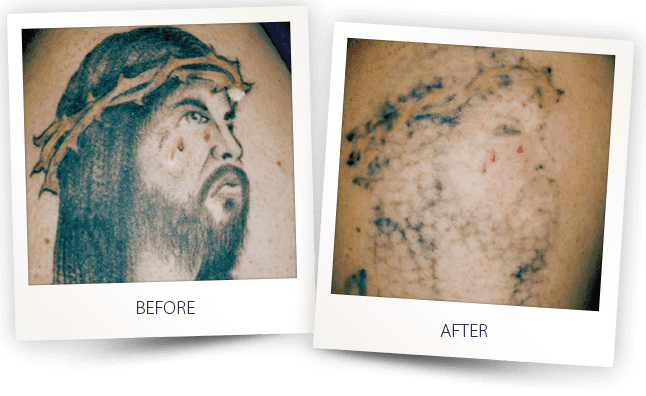 Laser Tattoo Removal treatment in Los Angeles