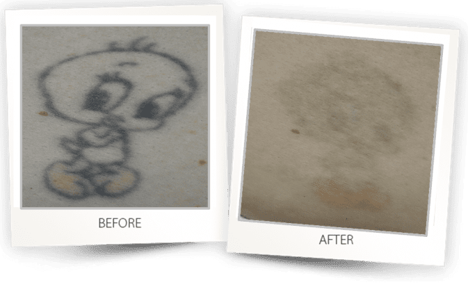 Laser Tattoo Removal treatment in West Hollywood