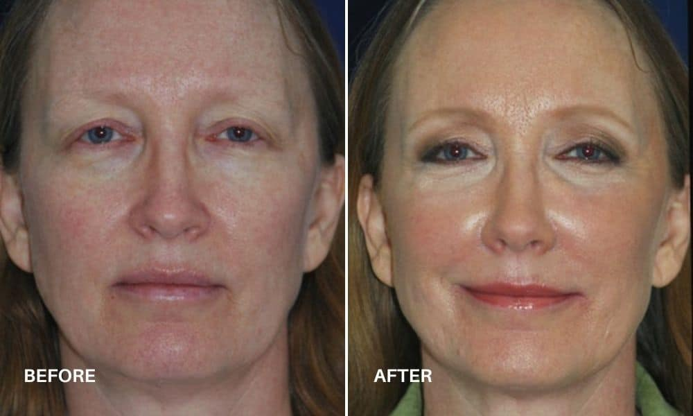 non_surgical_facelift_before_and_after_1