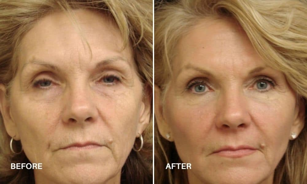 non_surgical_facelift_before_and_after_2