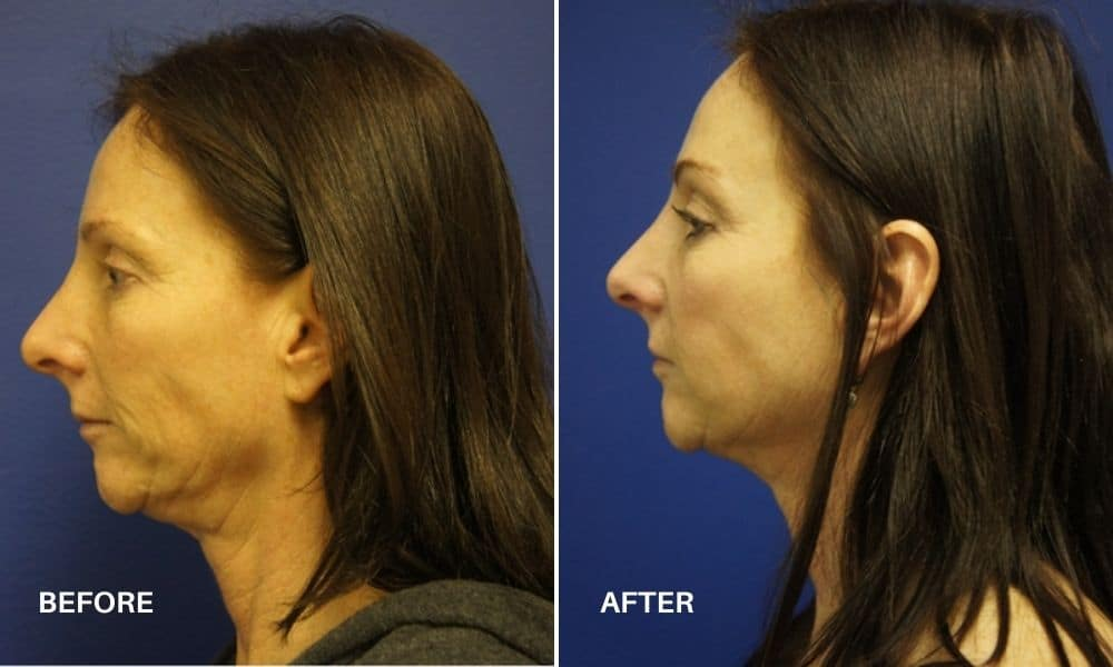 non_surgical_facelift_before_and_after_3