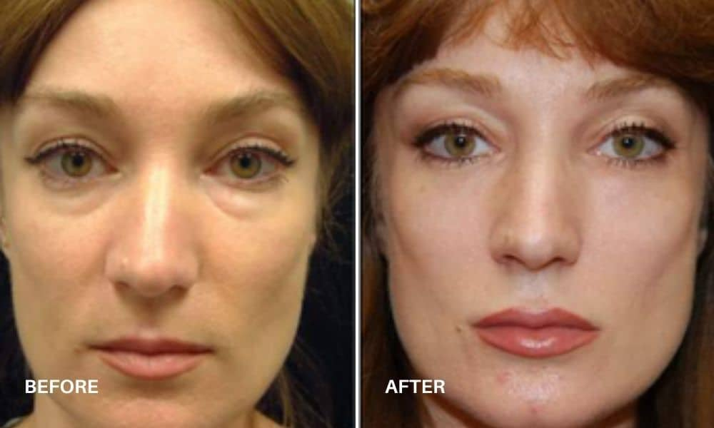non_surgical_facelift_before_and_after_4