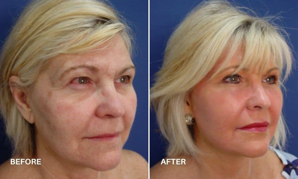 non_surgical_facelift_before_and_after_5