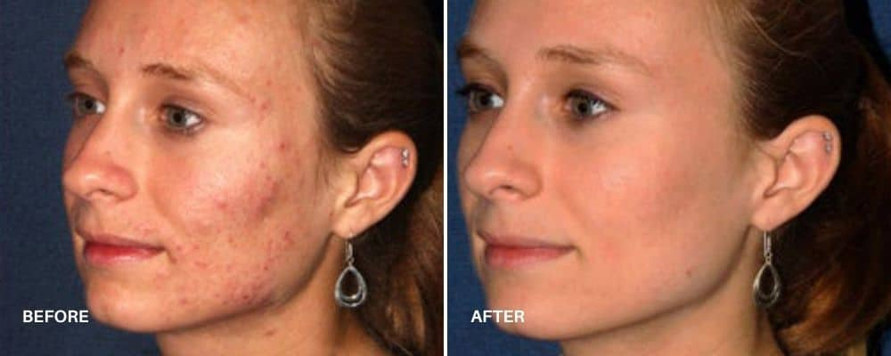 photodynamic_therapy_before_and_after_5