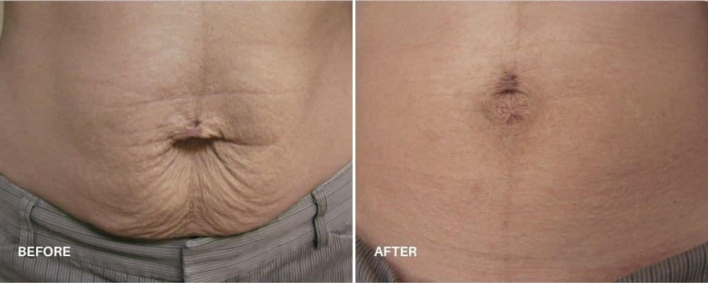 skintyte_before_and_after_4