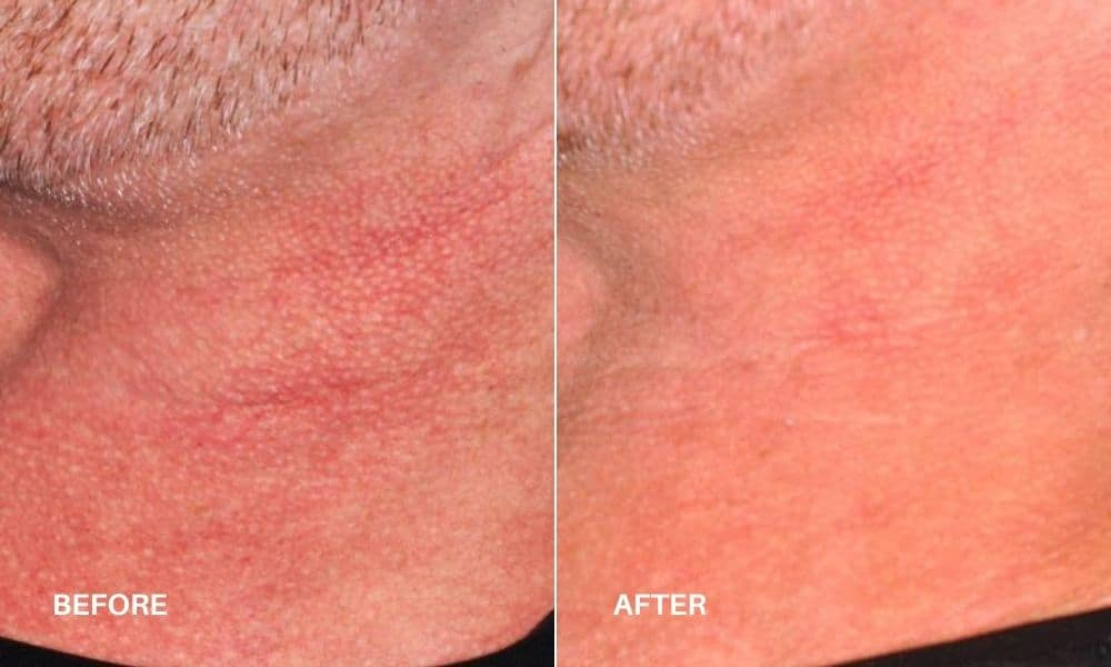 vbeam_sclerotherapy_before_bd_after_3
