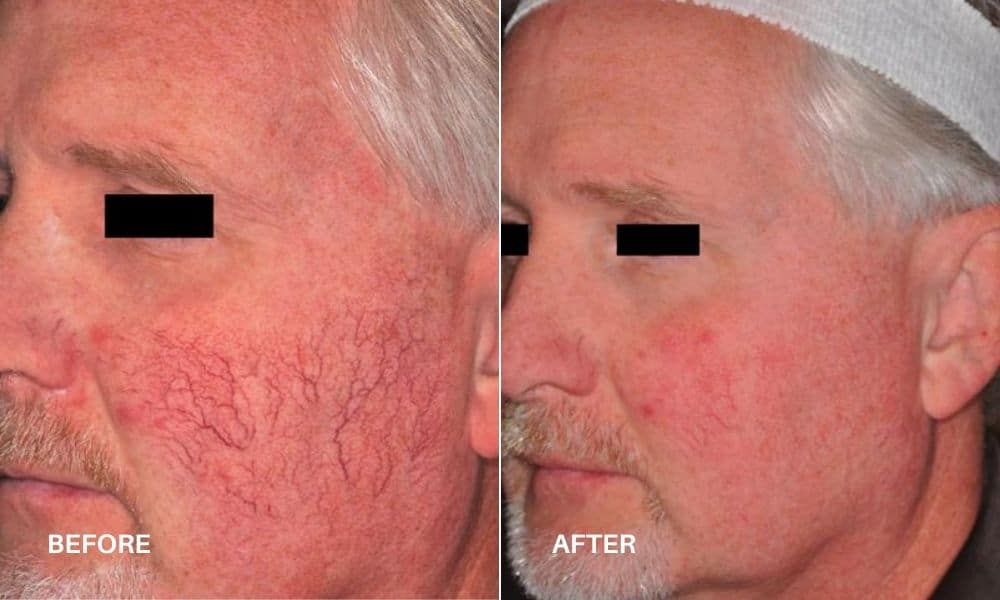 vbeam_sclerotherapy_before_bd_after_4