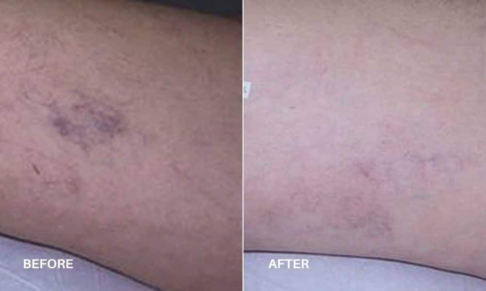 vbeam_sclerotherapy_before_bd_after_5