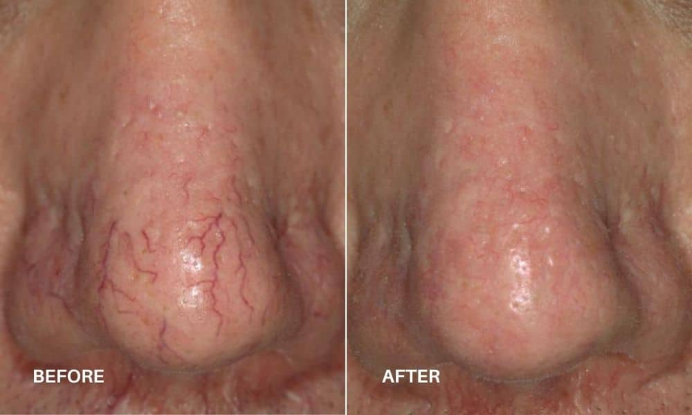 vbeam_sclerotherapy_before_bd_after_6