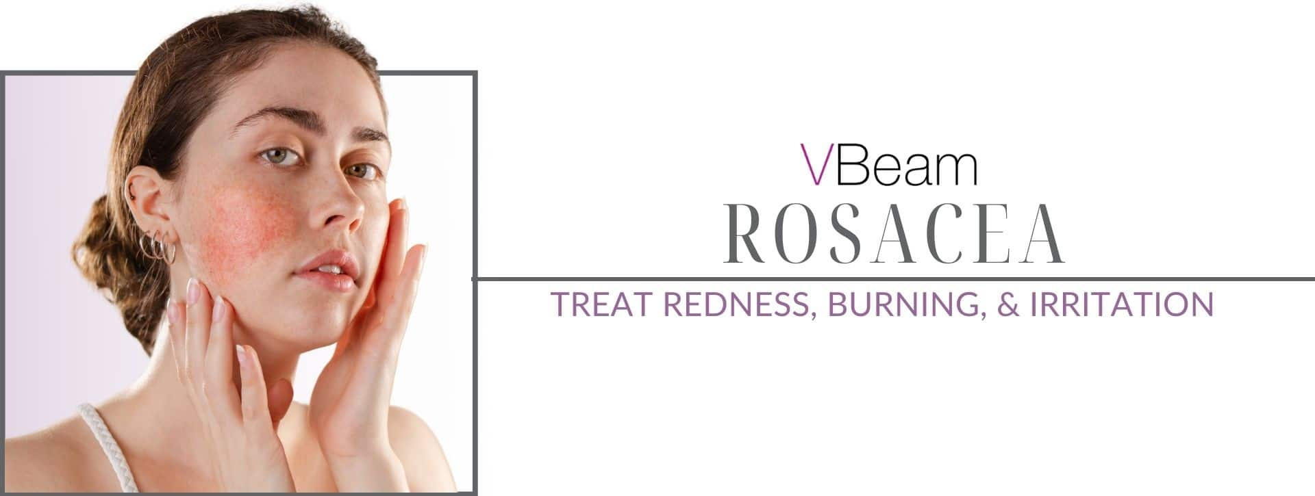 Woman's face from Rosacea treatment with Vbeam laser in Los Angeles