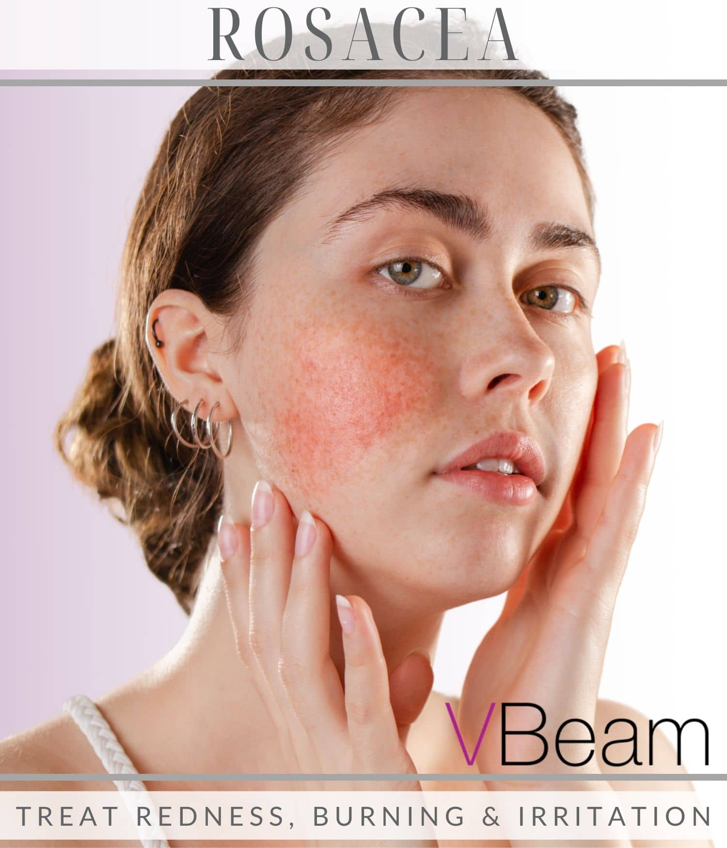 Woman's face from Rosacea treatment with Vbeam laser in Los Angeles, CA